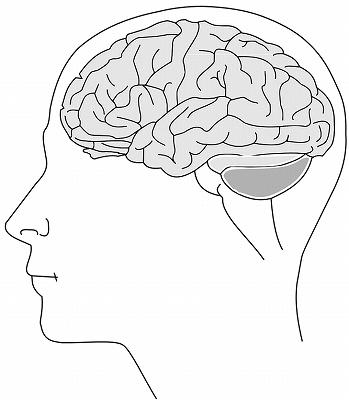 グリオーマ がん保険 脳腫瘍