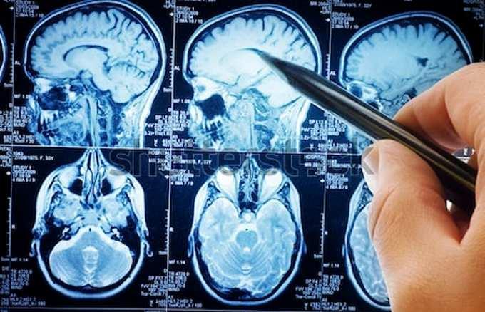 医療保険 脳動脈瘤 レントゲン
