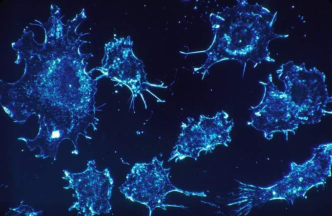 lsil がん保険 がん細胞