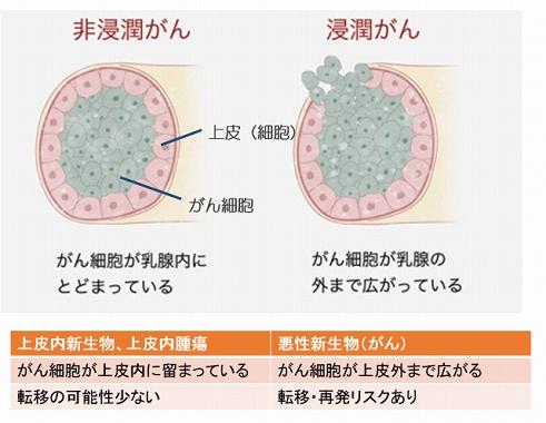 非浸潤性乳癌 がん保険 上皮内新生物扱い