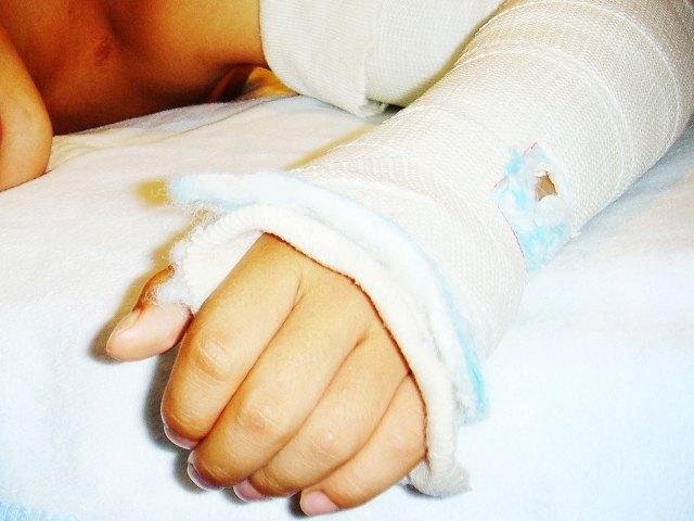 生命保険 骨折 ひび 保障内容
