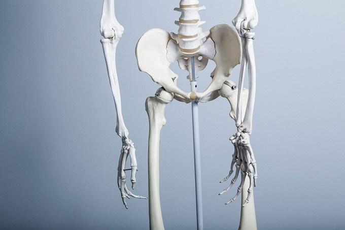 臼蓋形成不全 医療保険 骨盤