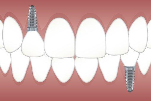 アフラック 医療保険 歯科 インプラント