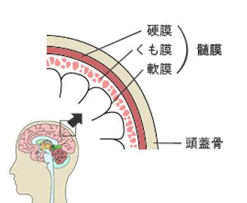髄膜腫 がん保険 髄膜