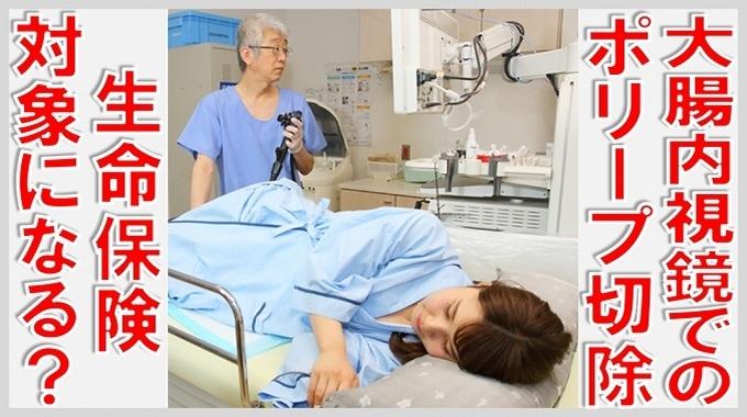 大腸内視鏡 ポリープ 切除 生命保険 サムネイル