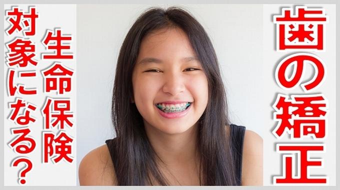 歯の矯正 生命保険 サムネイル