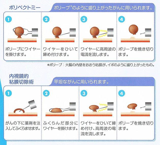 大腸内視鏡 ポリープ 切除 生命保険 ポリープ切除の手術の費用