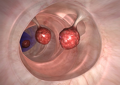 かんぽ生命 大腸ポリープ 切除 基本を知る
